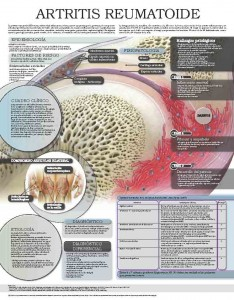5260-Artritis-Reumatoide